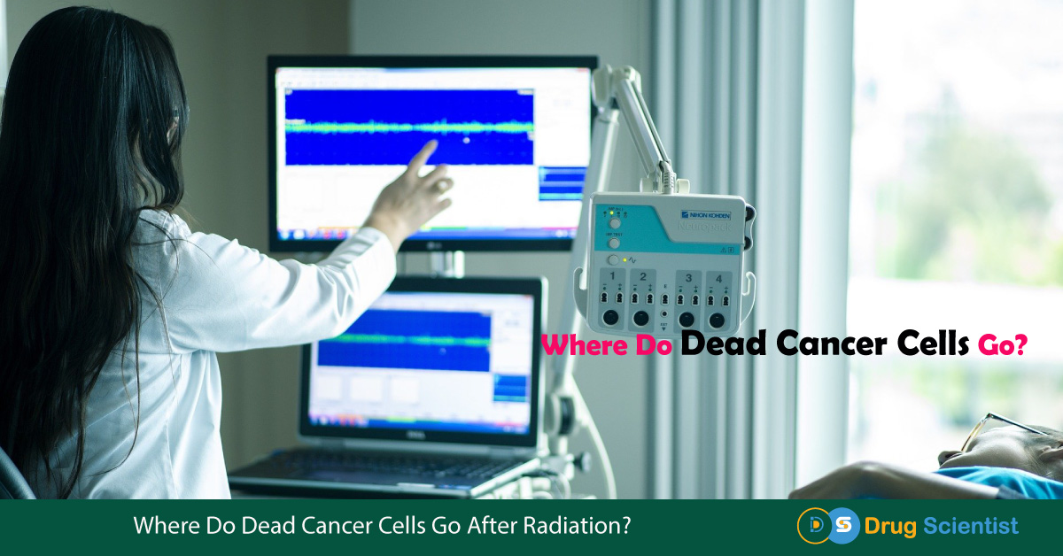 Where Do Dead Cancer Cells Go After Radiation?- Researchers' Opinions